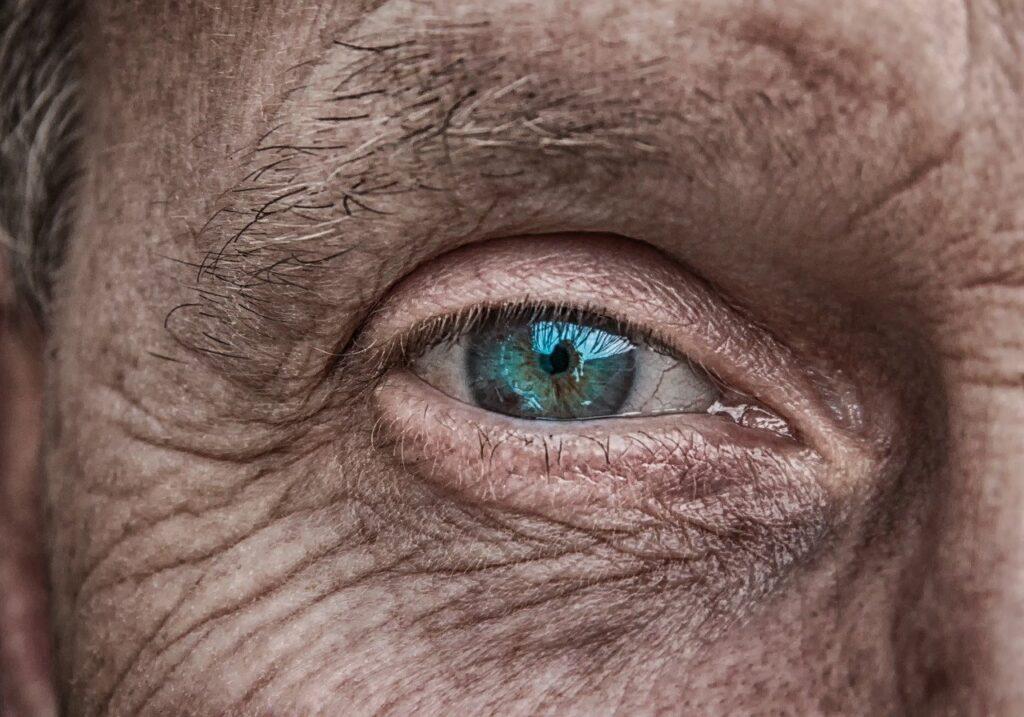 skin, eye, iris